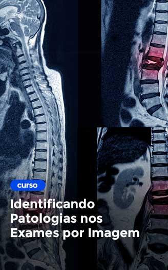 Identificando-Patologias--nos-Exames-por-Imagem
